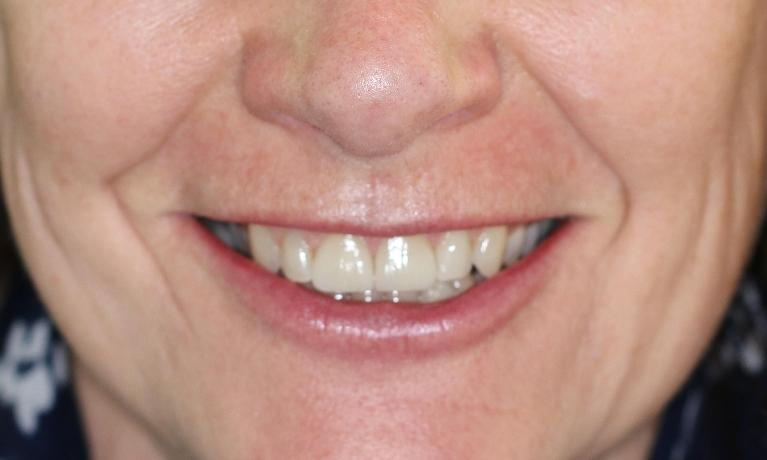 Veneers-and-Teeth-Whitening-After-Image
