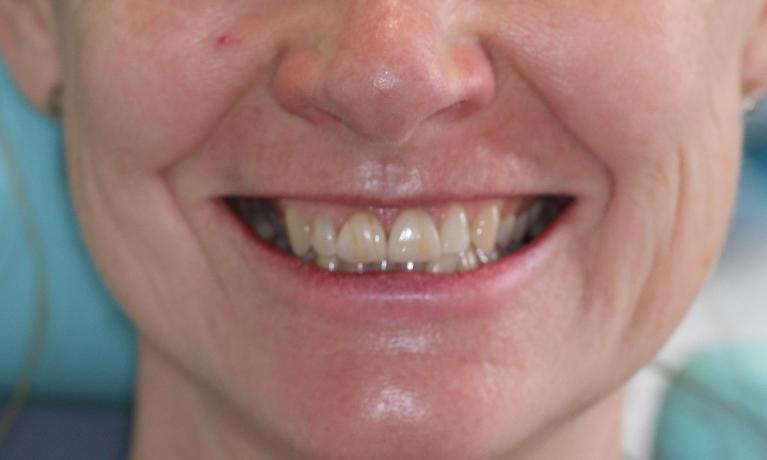 Veneers-and-Teeth-Whitening-Before-Image